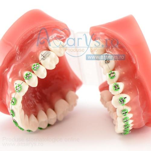 Arcada dentara ortodontie