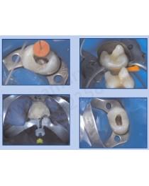 Clema Diga TOR VM 12A molari 2 si 3 superior stanga
