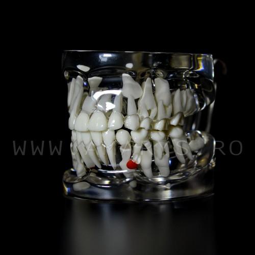 Arcada dentara patologie dentitie mixta