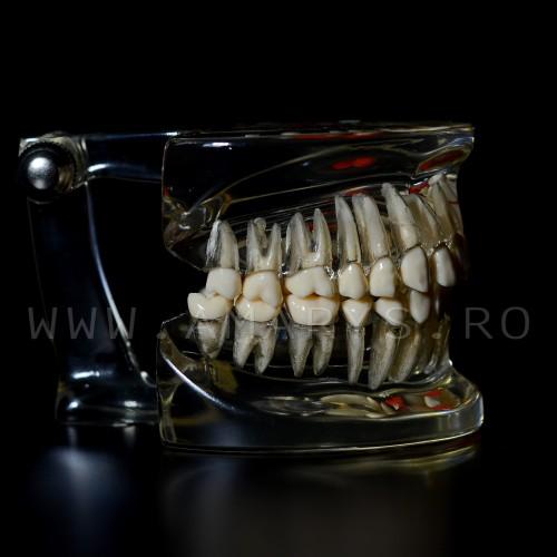 Arcada dentara  dinti detasabili + patologie molar inclus - cariologie - bont protetic