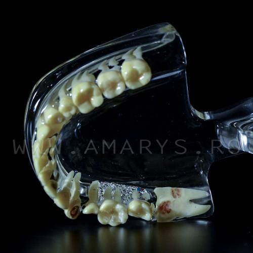 Arcada dentara patologie implant - canin inclus- vascularizatie
