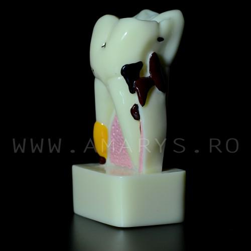 Dinte demonstrativ Molar alb: patologie endo-perio-cario