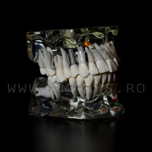 Arcada dentara patologie implant - molar inclus - extruzie