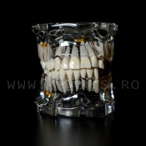 Arcada dentara patologie implant - endo - cario