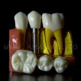 Model explicativ marit cu Implant+ Bont protetic +Coroana pe implant vs Lucrare dentara