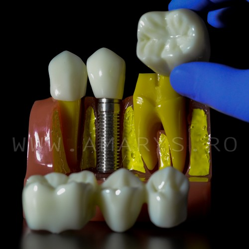 Model explicativ marit cu Implant+ Bont protetic +Coroana pe implant vs Lucrare dentara